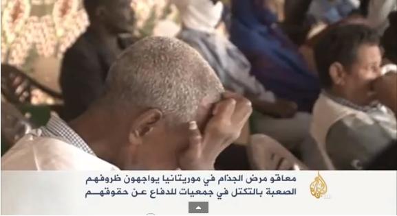 مرض الجذام بموريتانيا