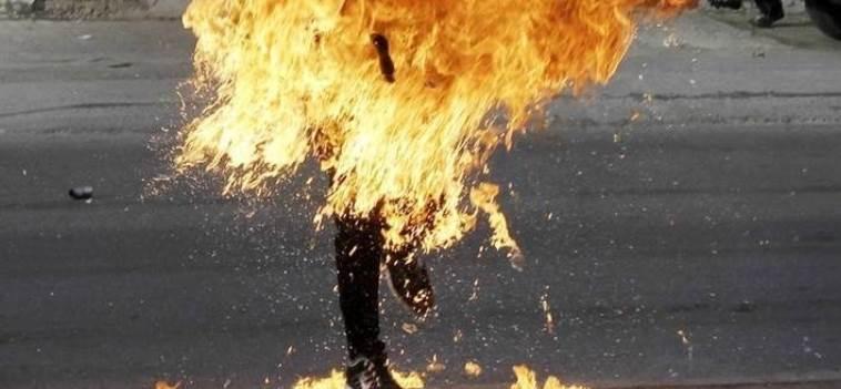 شاب يضرم النار في جسده بالشلف الجزائرية