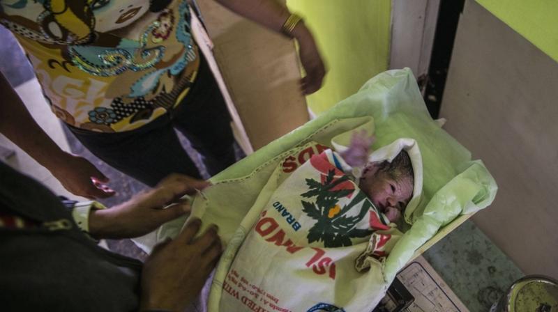 تقرير: مليون طفل يموتون سنويا في الولادة