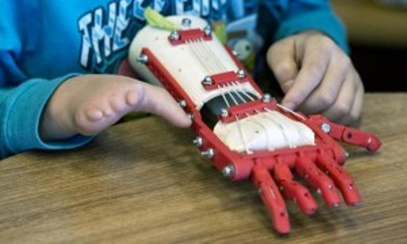 يد ثلاثية الأبعاد تساعد طفل بدون أصابع