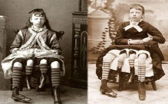جوزيفين ميرتل... المرأة ذات الأربعة أرجل!