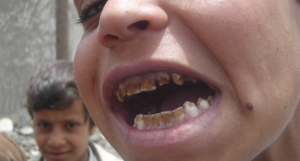 المشروبات الطاقية تؤدي إلى تآكل الأسنان