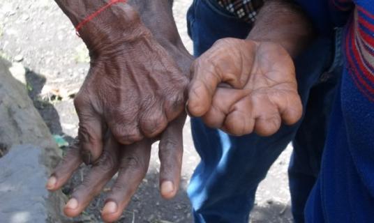 قطع الأصابع في أندونيسيا دليل الحزن على الميت
