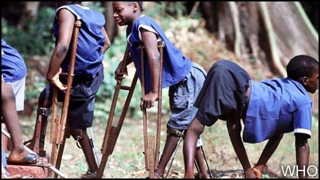 شلل الأطفال..منظمة الصحة العالمية تدق ناقوس الخطر