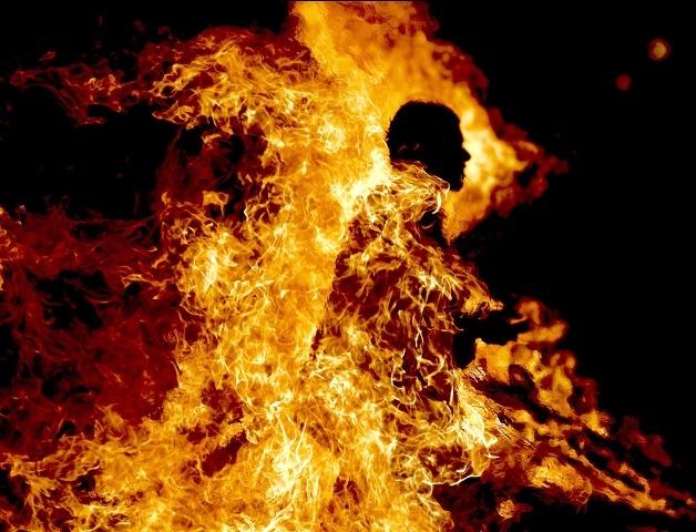 وفاة شخص أضرم النار في جسده بالمنيعة