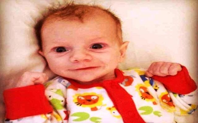 قلب بقرة أنقذ حياة طفل في انكلترا