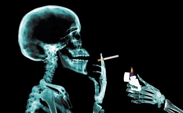 التدخين يقتل 10 آلاف شخص سنويًا في تونس