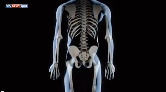 النساء أكثر عرضة لهشاشة العظام