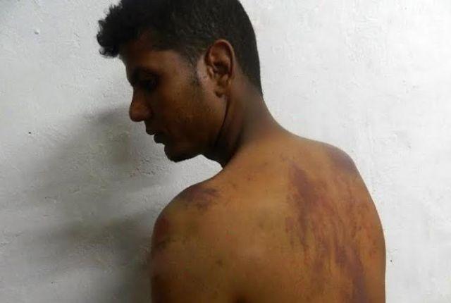 منتدى دعم مؤيدي الحكم الذاتي يتضامن مع شاب صحراوي تعرض للتعذيب من طرف البوليساريو