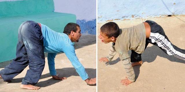 قصة عائلة مغربية يمشي أبناؤها على أربع بإقليم تطوان