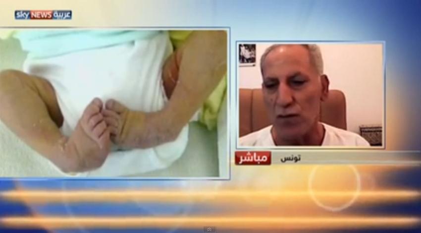طبيب تونسي يبتكر علاج لتشوهات أقدام الرضع