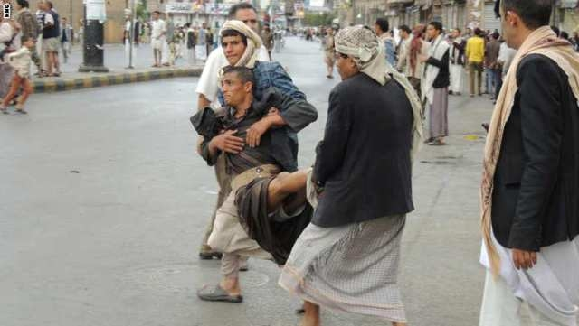 43 قتيلا في تفجير انتحاري بصنعاء