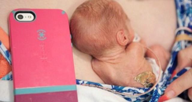 بالفيديو.. ولادة طفلة أمريكية بحجم الـ