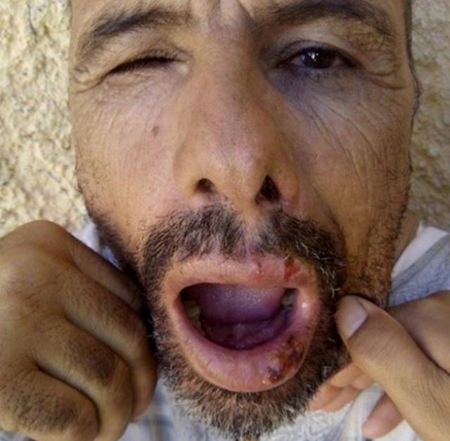 عاجل..معتقل سياسي يتعرض للاعتداء  في سجن الذهيبية بمخيمات تيندوف