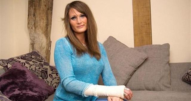 عظام امرأة بريطانية تخرج من مكانها 10 مرات يومياً