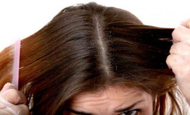 كيف تتخلصين من قشرة الشعر للأبد بالزعتر ؟