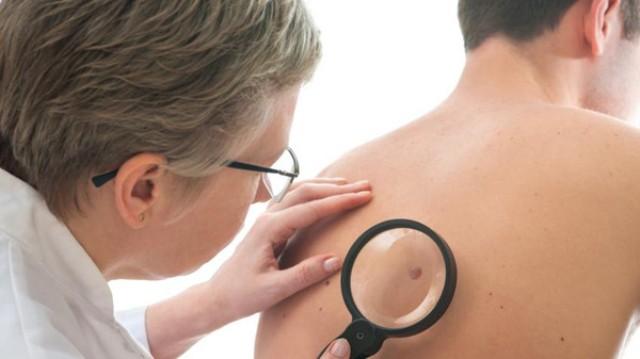 اكتشاف علاج ثوري لأخطر أنواع سرطان الجلد