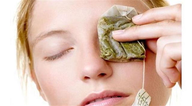 6 علاجات منزلية بسيطة للهالات السوداء حول العينين