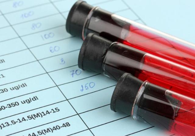 ظهور نوع جديد من الإيدز في كوبا