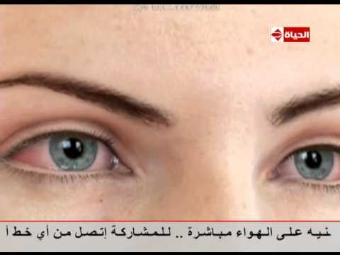 فيديو يوضح أعراض جفاف العين