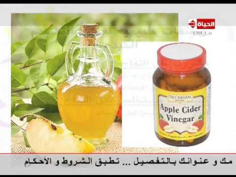 بالفيديو.. خل التفاح أفضل علاج لتشحم الكبد