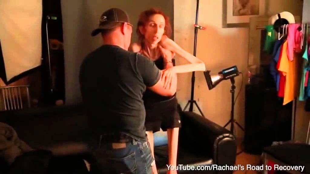 فيديو صادم:فقدان الشهية يحول امرأة إلى هيكل عظمي