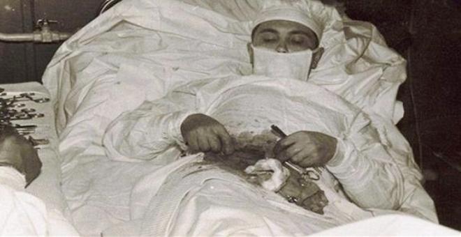 جراح روسي يستأصل زائدته الدوديّة بنفسه