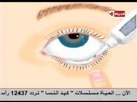 بالفيديو...الطريقة المثلي لوضع قطرات و مراهم العين