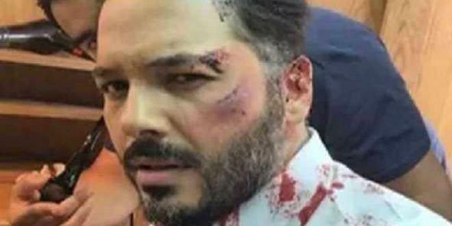 almaghreb-today-رامي-عياش-بعد-الضرب