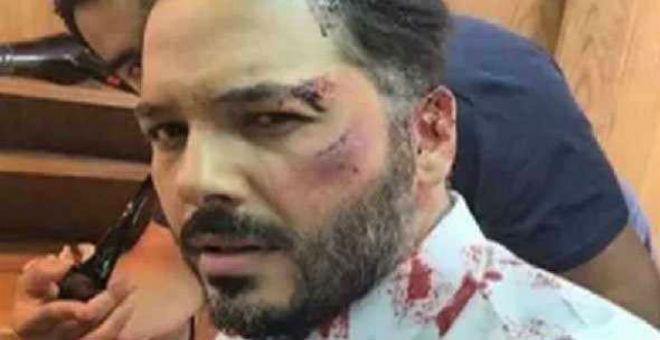 رامي عياش يتعرض لضرب