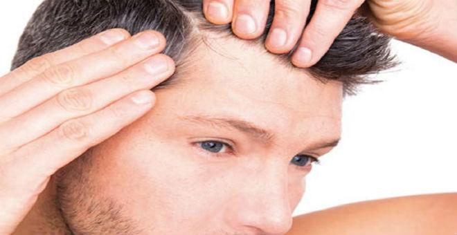 للرجل: طريقة جديدة لزراعة الشعر في ساعة واحدة