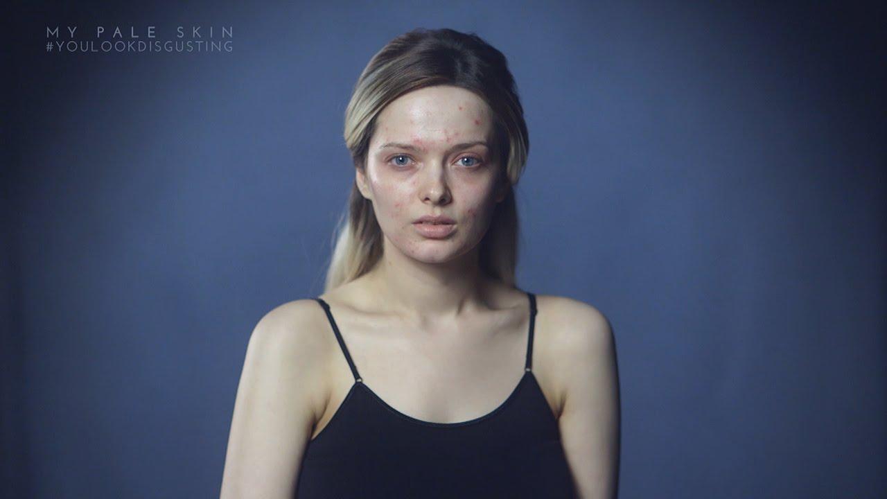 فتاة بريطانية تواجه الانتقادات بسبب بشرة وجهها
