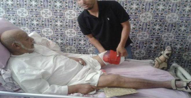 قدم صناعية للممثل المراكشي عبد الجبار لوزير
