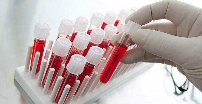 المغاربة مطالبون بالتبرع بالدم..بسبب ''النقص الحاد''