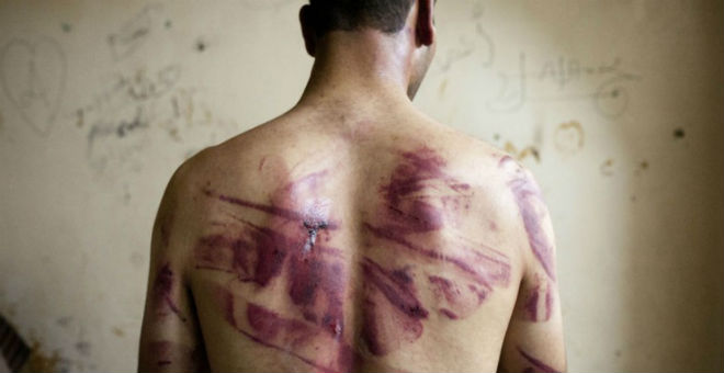 تونس..صعوبات تعيق التوصل لأدلة بشأن تعرض معتقلين للتعذيب