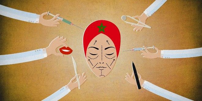 المغاربة من أكثر الشعوب إقبالاً على عمليات التجميل