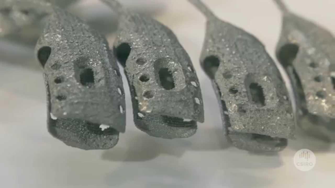 طباعة أول قفص صدري من التيتانيوم