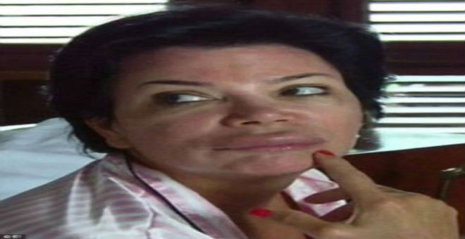 بالصور..تشوه وجه والدة كيم كاردشيان