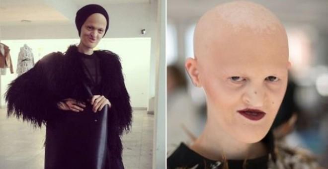 بريطانية صلعاء بلا أسنان تتحول لعارضة أزياء