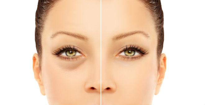 أشهر 10 طرق منزلية لعلاج انتفاخ العيون