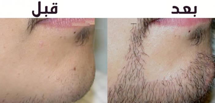 طرق زيادة شعر اللحية الخفيف عند الرجال