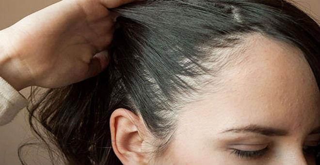 تخلصي من فراغات الشعر مع هذه الوصفات الطبيعية