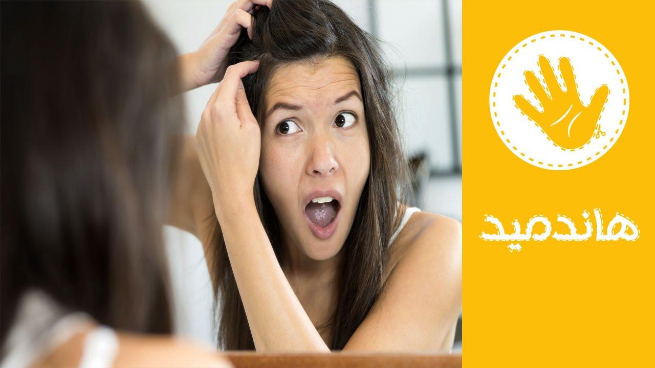 3 طرق طبيعية للتخلص من قشرة الشعر نهائيا
