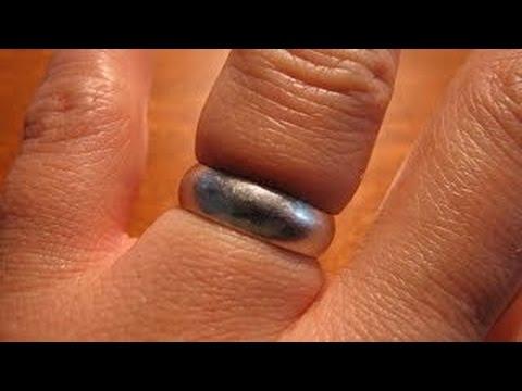 بهذه الطريقة يمكنك إخراج الخاتم العالق في الأصبع