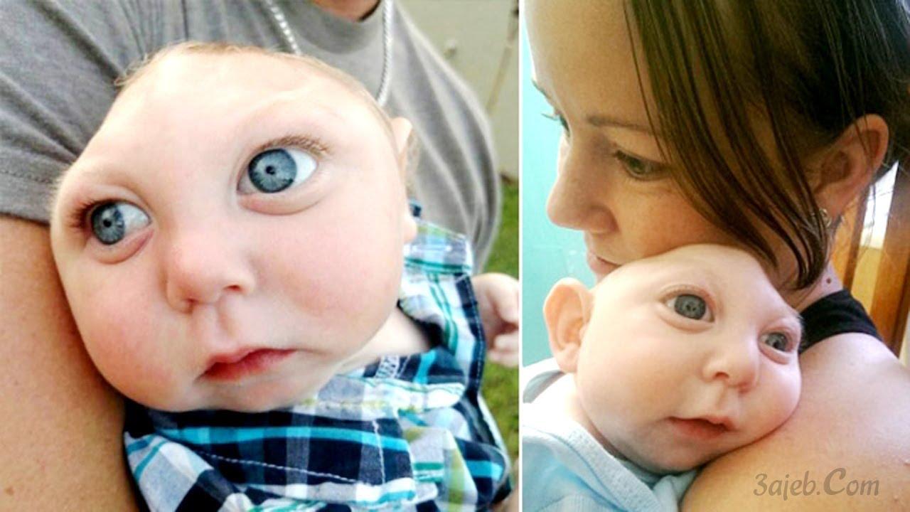 قصة الطفل المعجزة ذو النصف جمجمة