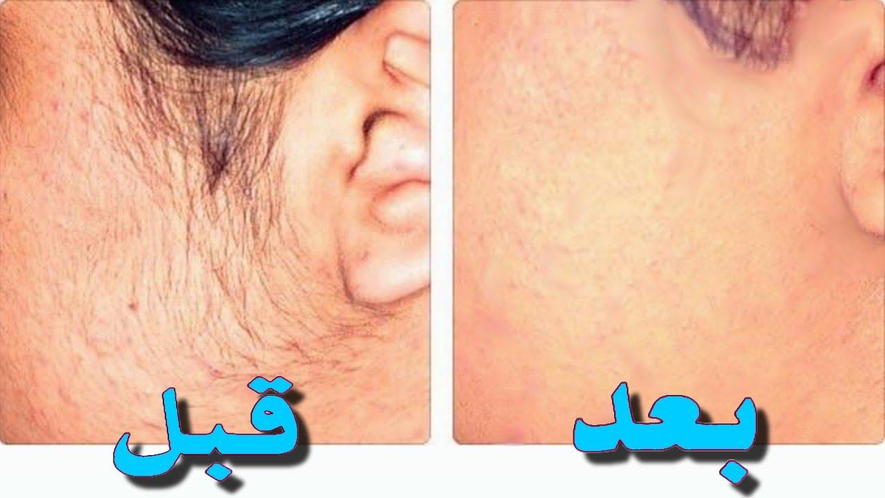 طريقة سهلة للتخلص من شعر الوجه للأبد