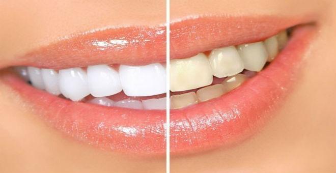 10 طرق لتبييض الاسنان في دقيقتين