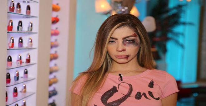 مذيعة مصرية تظهر بآثار ضرب على وجهها