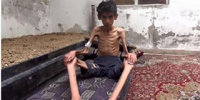 المجاعة في مضايا السورية