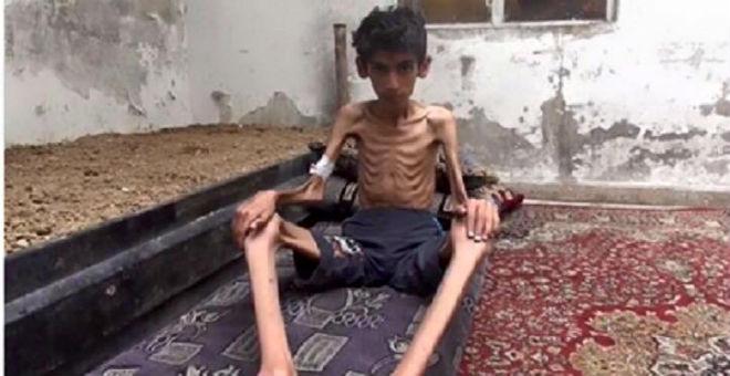 الموت البطيء يزحف على مضايا السورية بسبب نقص الغذاء